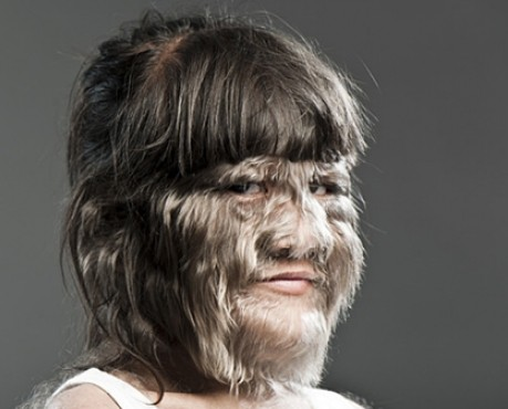 Hypertrichosis Werewolf Syndrome